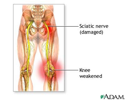 sciatic nerve lovelywinehealthyfood